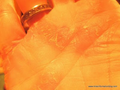 Hand with psoriasis